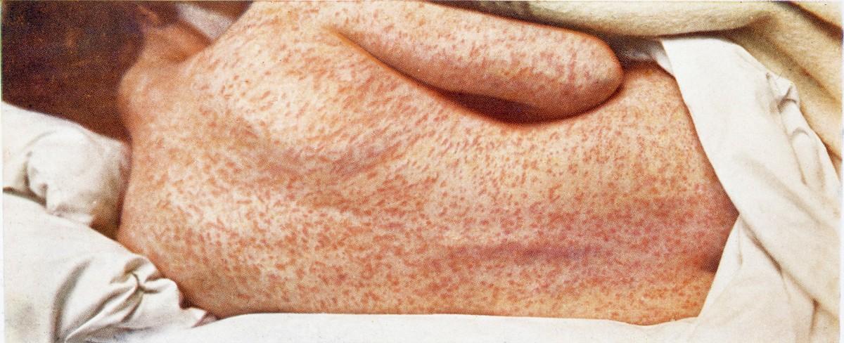 Standard infektionssygdomme